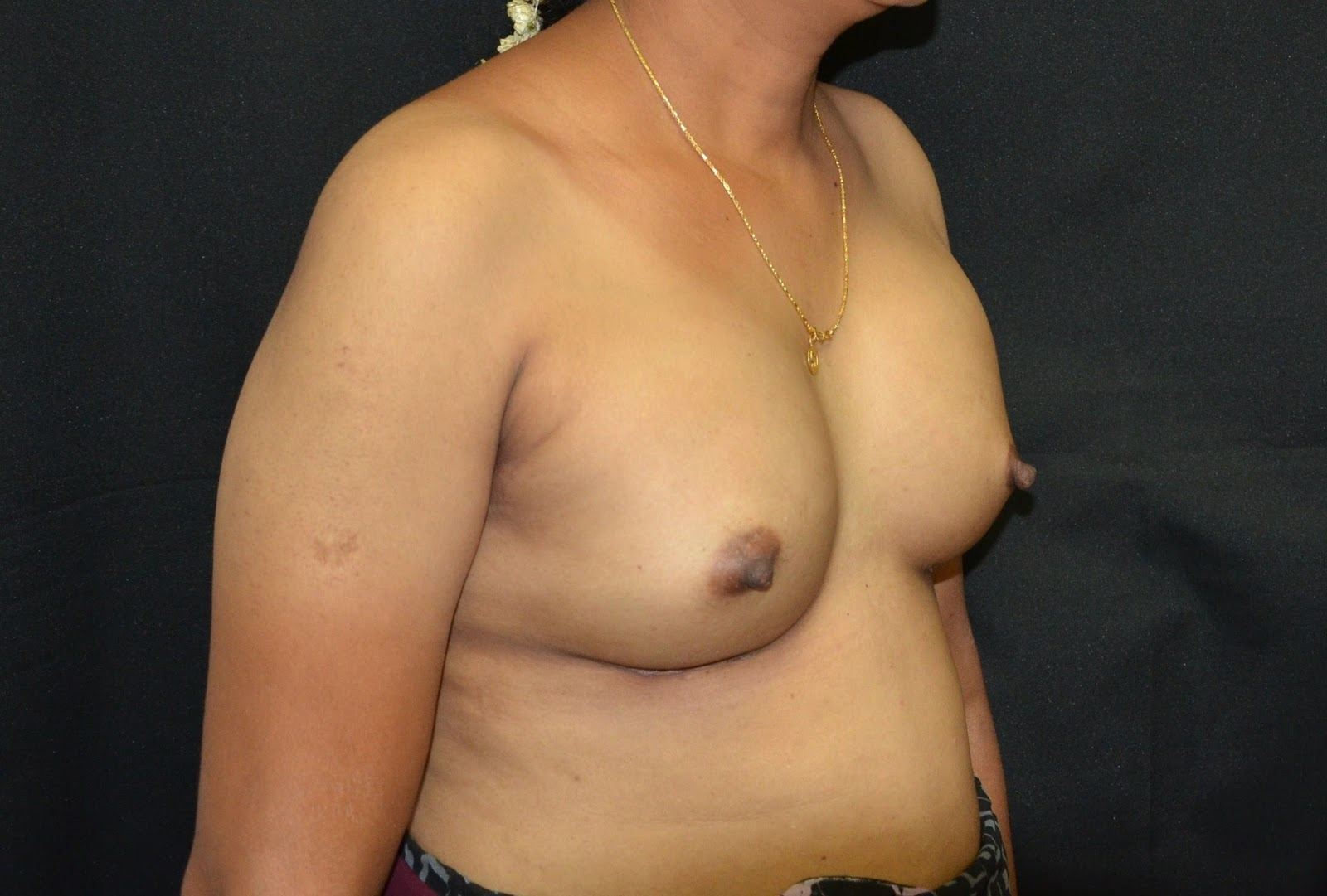 breast implants mentor jpg 1080x810