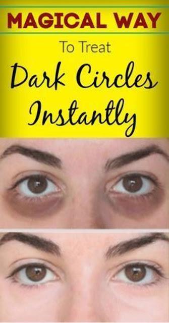 Treating Dark Circles