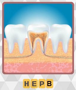 схематическое изображение где находится и как выглядит нерв зуба