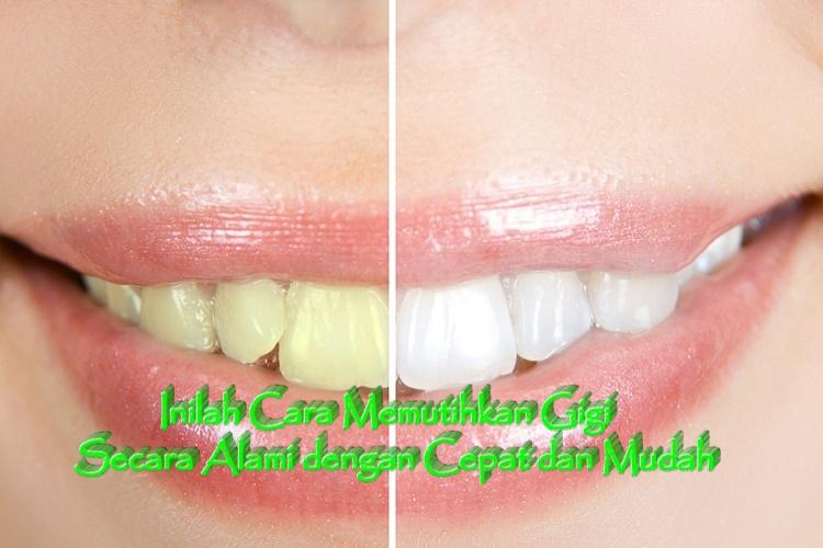 Cara Memutihkan Gigi Secara Alami Dengan Jeruk Nipis Brad Erva
