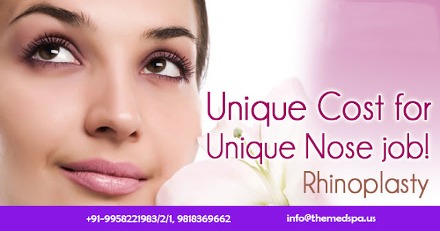 Nose Job For Getting Proportionate Shape of Nose And Correction Of Airway