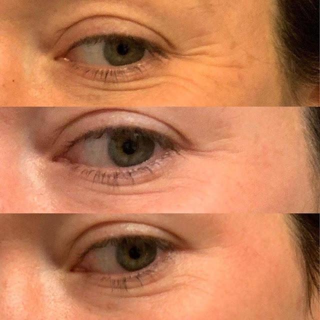 Top 3 des traitements efficaces pour éliminer les rides sous les yeux