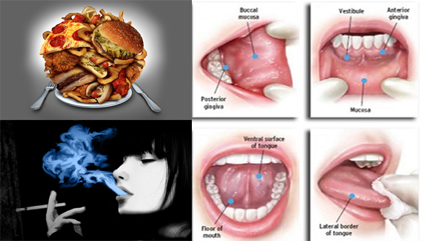 2tPSXOv Check This Out! Habits You Need To Stop in Order To Prevent Oral Cancer!