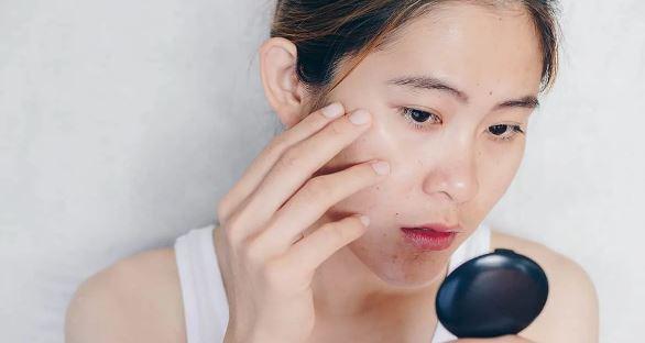 singapore dermtaologist laser treatment scars skin scar removal
