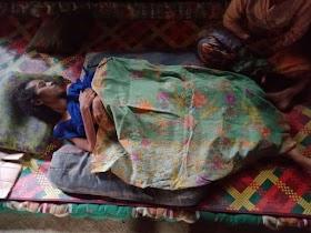 Junaida Penderita penyakit Paru-paru Kering, Butuh Uluran Tangan untuk Biaya pengobatan
