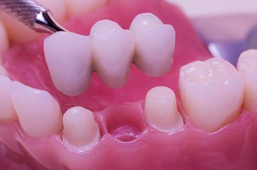 Làm sao để phục hồi răng đẹp mà tiết kiệm được tối đa chi phí