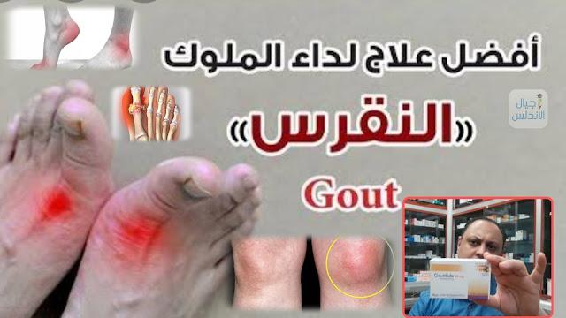 اسرع علاج للنقرس والتهابات المفاصل|gout treatment|  دكتور محمد فاروق عيسي