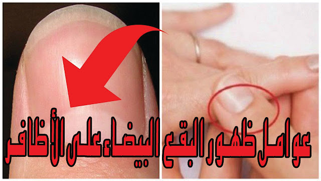 عوامل ظهور البقع البيضاء على الأظافر