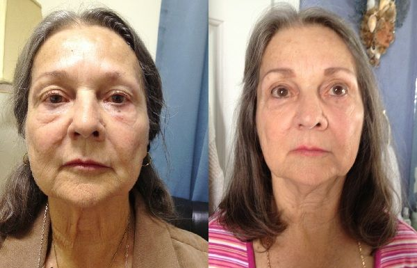 Fill Out Sunken Cheeks With Facial Aerobics Treatments: Get Youthful