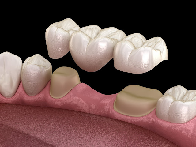 dental bridge FAQ - frequently asked questions