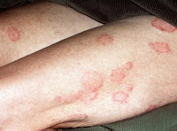 nummular eczema treatment cream