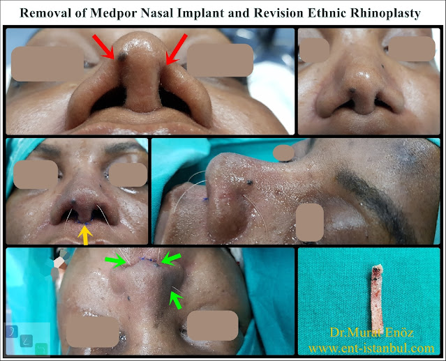 Revision Ethnic Nose Surgery in Istanbul,Ethnic expert rhinoplasty surgeon,Medpor Implant Removal, Revision African American Rhinoplasty