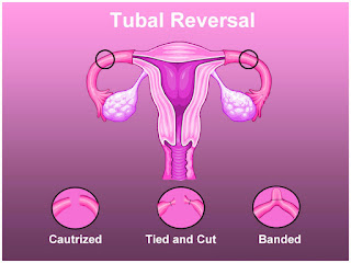 Tubal Reversal Surgery in Mumbai