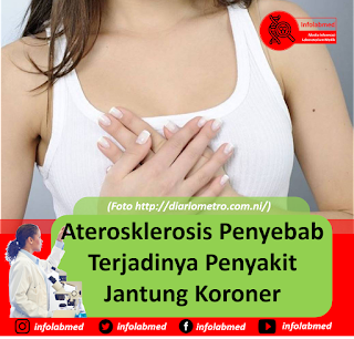 Aterosklerosis Penyebab Terjadinya Penyakit Jantung Koroner