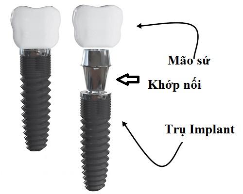 tư vấn cấy ghép răng implant -4