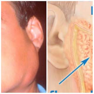 Penyakit-baguak-atau-disebut-gondongan-atau-parotitis-atau-bengkak-pada-pipi