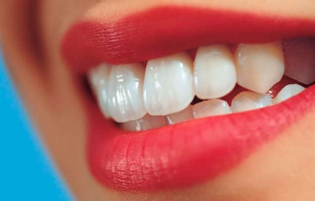Cara Memutihkan Gigi Secara Alami Dan Permanen Cara Memutihkan Gigi