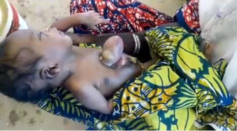 Video, photos: Baby born with heart hanging outside body in Maiduguri