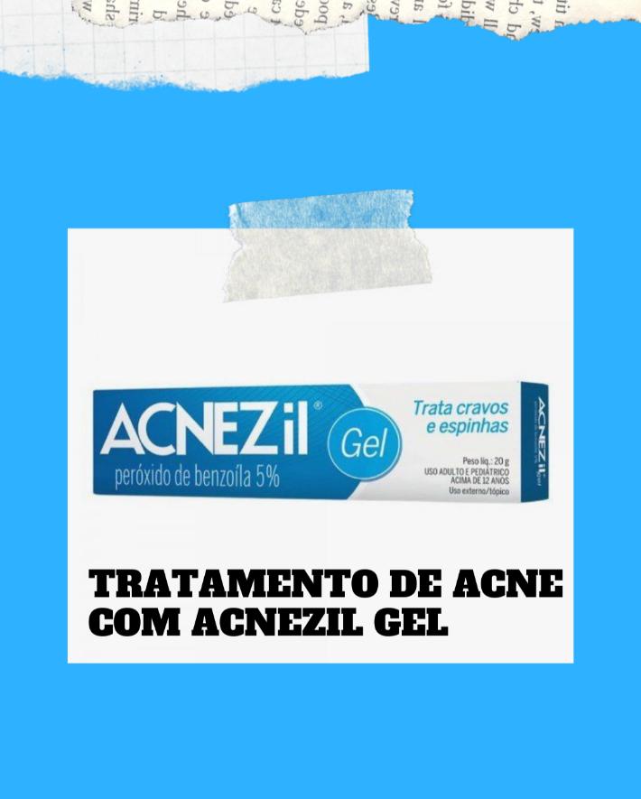 Tratamento de acne com Acnezil,funciona mesmo?