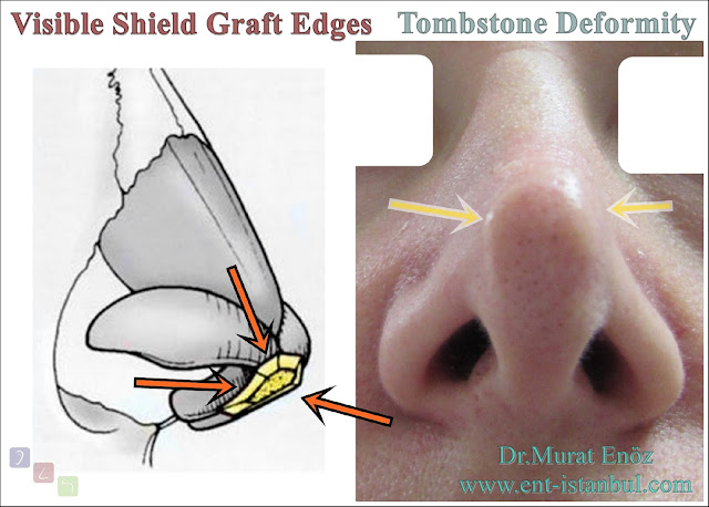 Shield Graft, Tombstone Deformity, Revision Nose Tip Plasty,
