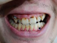 Penyebab Utama Terjadi Gigi Hitam pada Orang Dewasa