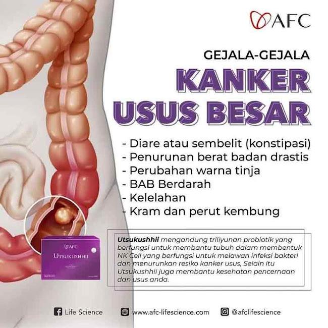 Agen Jual: Vitamin SOP Subarashi, SOP 100+ Untuk Ibu Hamil, di Yogyakarta
