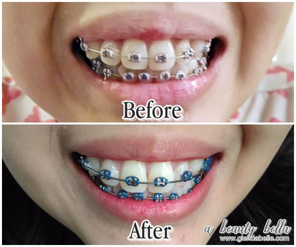 Acidic Foods Beverages Like Tea And Coffee Would Go On To Discolor The Braces Thus There Be No Advantage Of Getting Colored