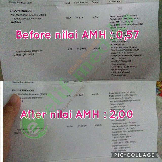 Pengalaman pasien AMH Rendah : AMH sebelum pengobatan 0,57 ng/mL dan setelah 2 bulan pengobatan naik menjadi 2,00 ng/mL. Saat usg transvaginal cadangan sel telur sudah banyak.