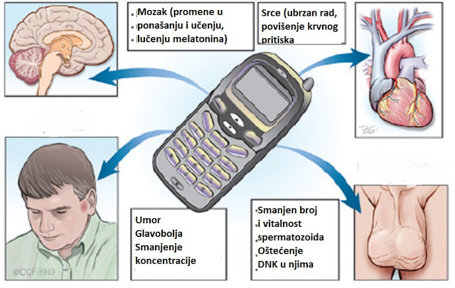 Negtivni efekti zračenja mobilnih telefona na organizam