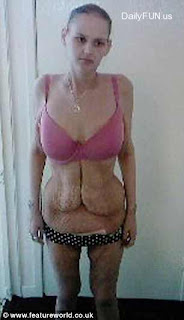 going from fat to anorexic 6 ΣΟΚ! Από παχύσαρκη έγινε ανορεξική... (pics)