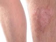 Ketahui dan kenali gejala tentang selulitis