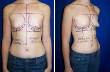 a0f63b5de80b3 Do You Have A Tuberous Breast  - RemediesPost
