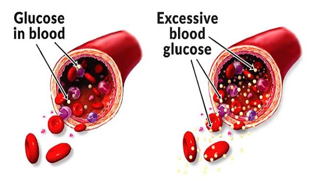 obat gula darah di apotik