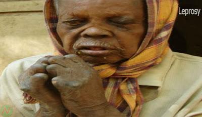 leprosy disease, কুষ্ঠরোগ