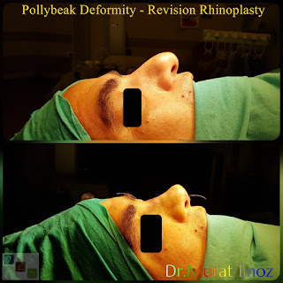 Pollybeak Deformity - Revision Rhinoplasty