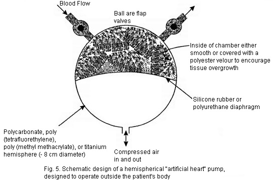 Artificial Heart pump