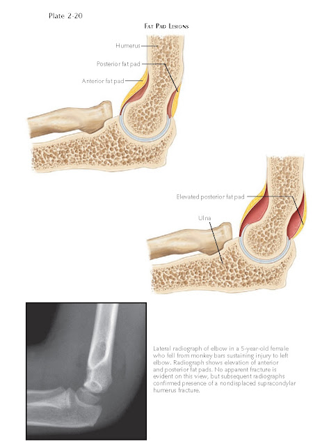 INJURY TO THE ELBOW