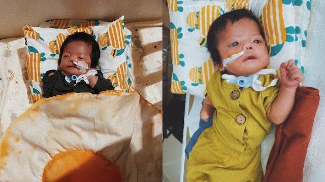 Kisah Hiro, Bayi Terlahir dengan Moebius Syndrome: Tak Bisa Menangis, Tak Ada Ekspresi di Wajahnya