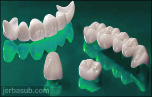 افضل دكتور تلبيس اسنان بالطائف