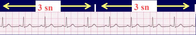 EKG Nedir? EKG Nasıl Okunur?