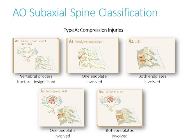AO Classification Cervical Spine Injuries