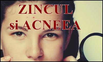 pareri bune zincul in tratamentul acneei