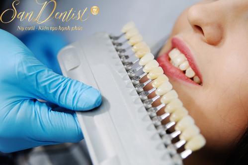 Phân loại phủ răng sứ thẩm mỹ chính xác và đầy đủ nhất năm 2019