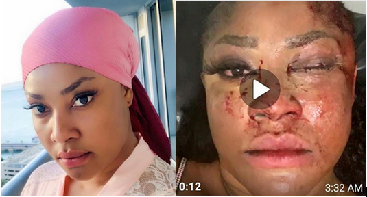 Angela-Okorie-face-after-attack-by-gunmen