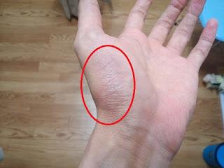 怪我の写真3