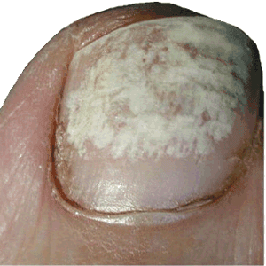 Natural Oral Onychomycosis Treatment