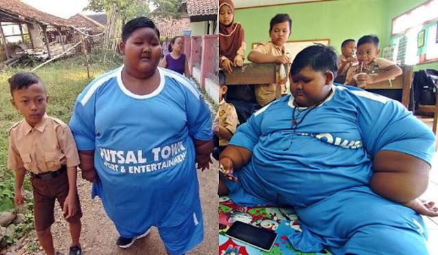Самый толстый ребенок мира похудел до неузнаваемости