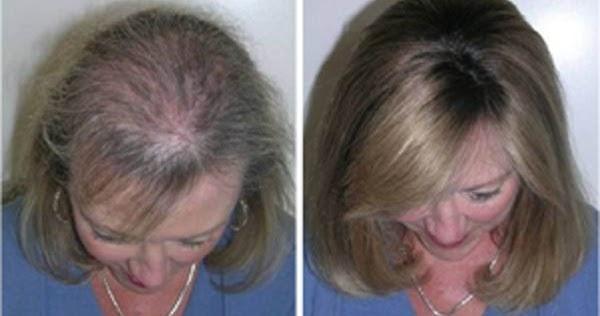 Plojka pour les cheveux le traitement