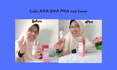 pengalamanku-memakai-colis-AHA-BHA-PHA-red-toner