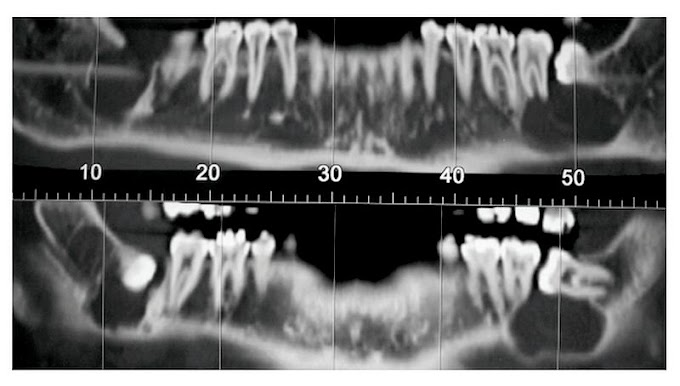 PDF: Orthokeratinized Odontogenic Cyst: a report of two cases in the mandible